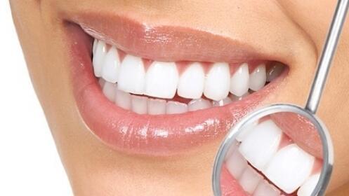 Limpieza dental o blanqueamiento ¡presume de sonrisa!