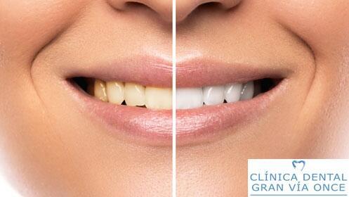 Luce tu mejor sonrisa en Clínica Dental Gran Vía Once