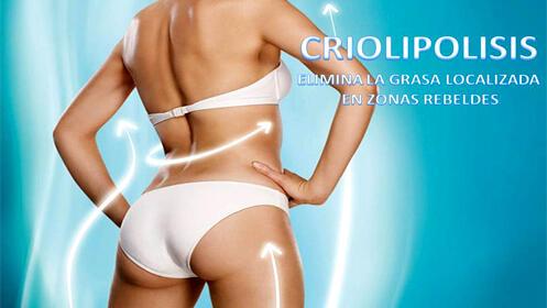 Criolipolisis 5D, recupera tu mejor figura eficazmente