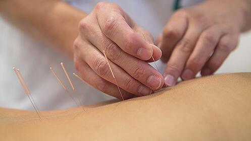 1 sesión de 45 minutos de acupuntura por 29€